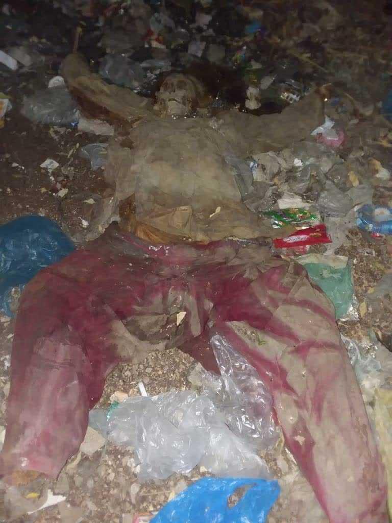 Skeleton of Woman Found in Garbage Dump in Karachi who Died 12 Years Ago